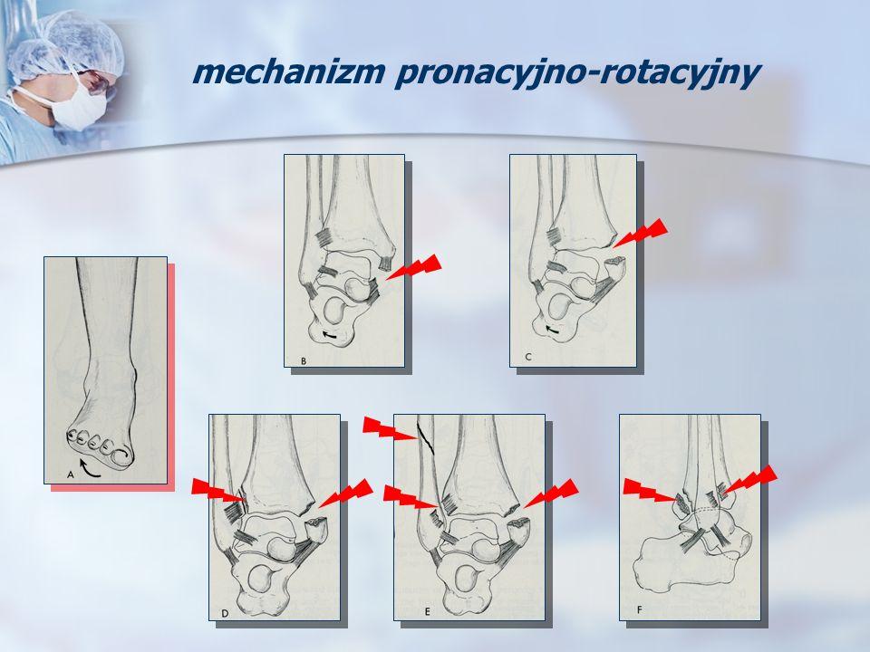 mechanizm pronacyjno-rotacyjny