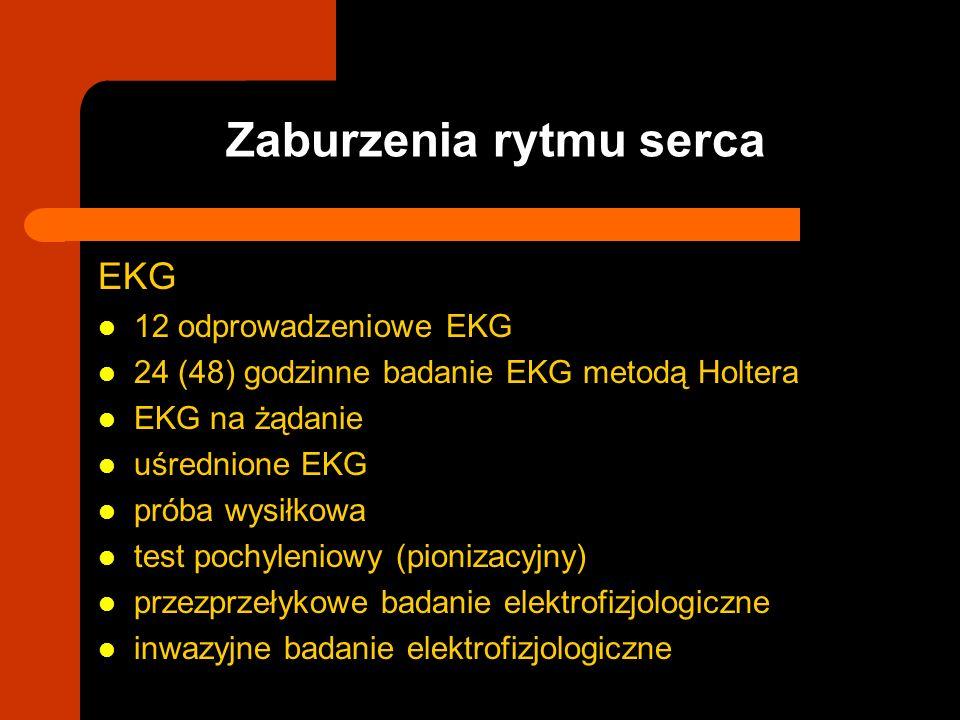 EKG 12 odprowadzeniowe EKG 24 (48) godzinne badanie EKG metodą Holtera EKG na żądanie uśrednione EKG próba wysiłkowa test pochyleniowy (pionizacyjny)