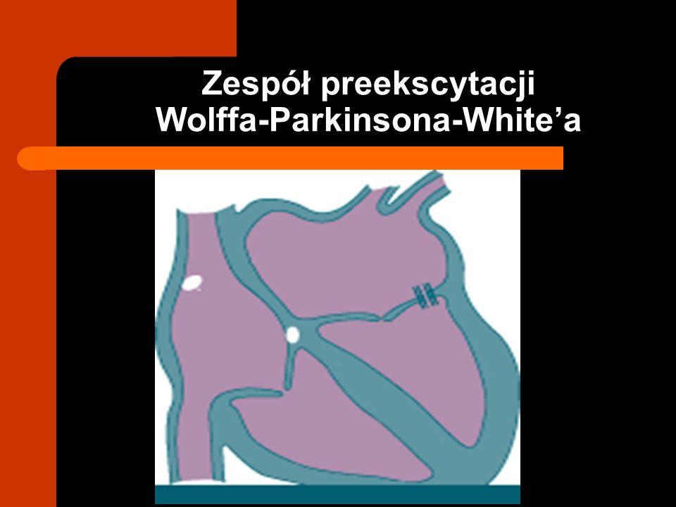 Zespół preekscytacji Wolffa-Parkinsona-Whitea