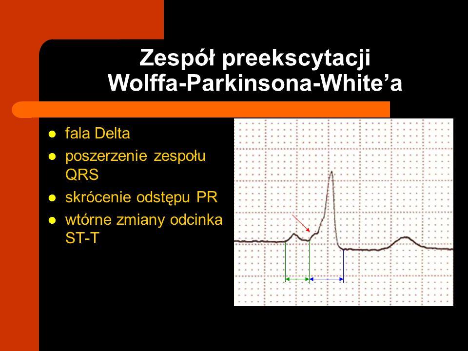 fala Delta poszerzenie zespołu QRS skrócenie odstępu PR wtórne zmiany odcinka ST-T Zespół preekscytacji Wolffa-Parkinsona-Whitea