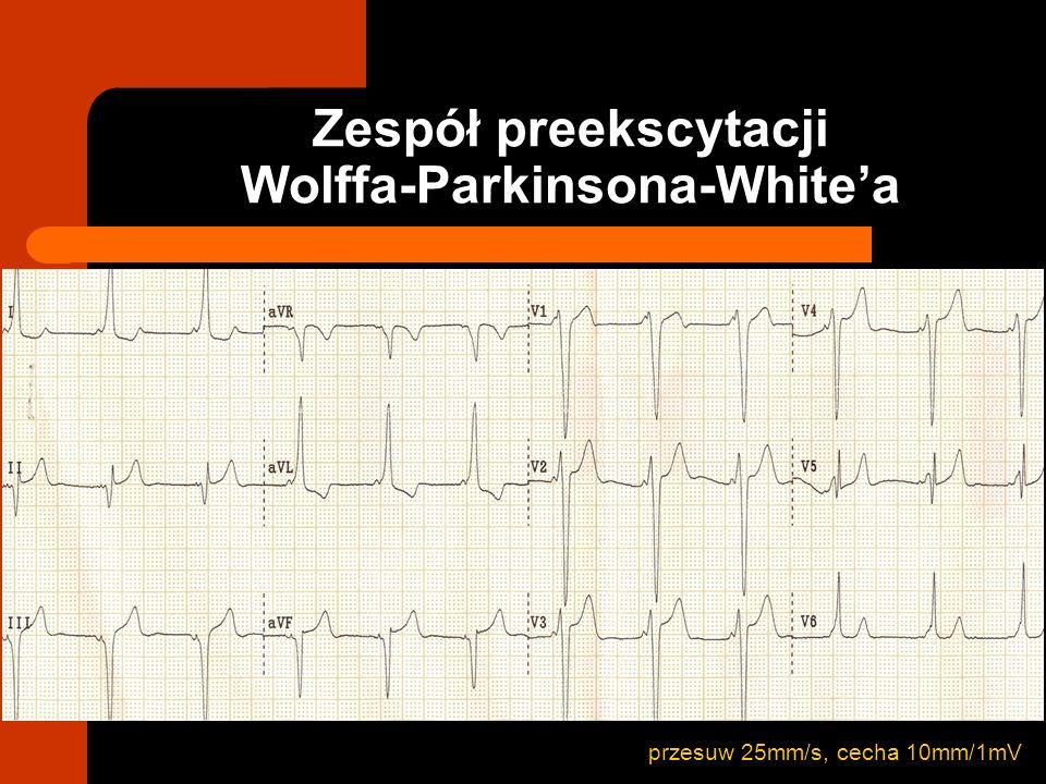 przesuw 25mm/s, cecha 10mm/1mV Zespół preekscytacji Wolffa-Parkinsona-Whitea
