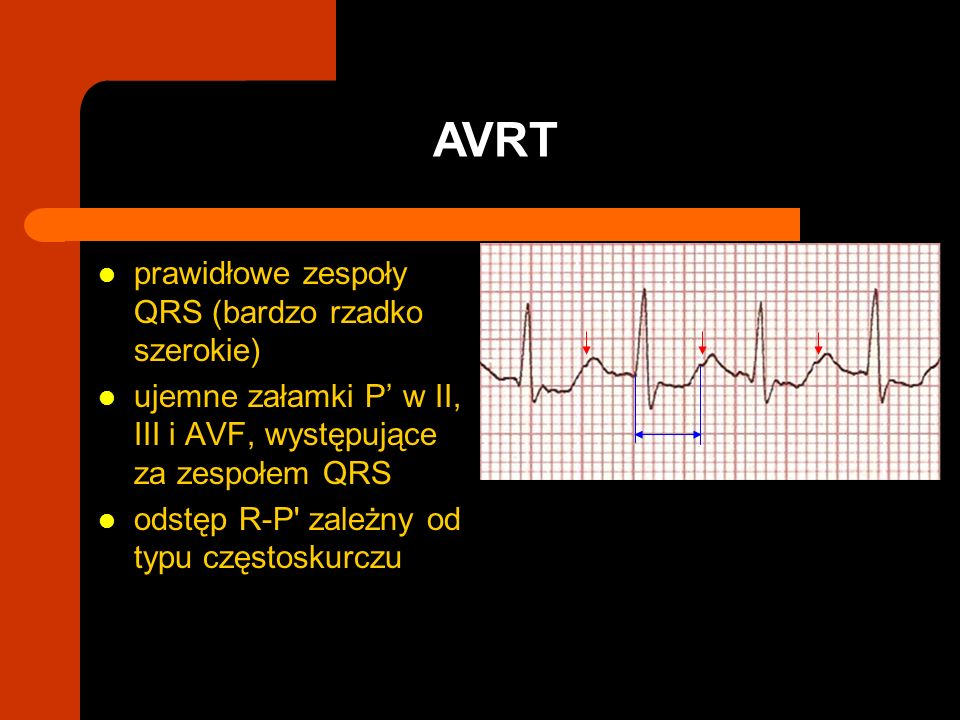 prawidłowe zespoły QRS (bardzo rzadko szerokie) ujemne załamki P w II, III i AVF, występujące za zespołem QRS odstęp R-P' zależny od typu częstoskurcz