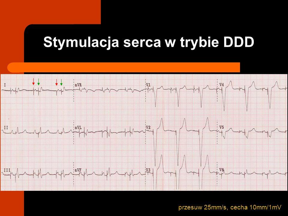 przesuw 25mm/s, cecha 10mm/1mV Stymulacja serca w trybie DDD