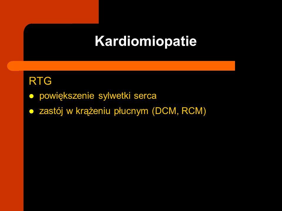 RTG powiększenie sylwetki serca zastój w krążeniu płucnym (DCM, RCM) Kardiomiopatie