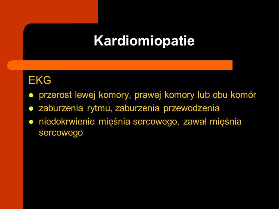 EKG przerost lewej komory, prawej komory lub obu komór zaburzenia rytmu, zaburzenia przewodzenia niedokrwienie mięśnia sercowego, zawał mięśnia sercow