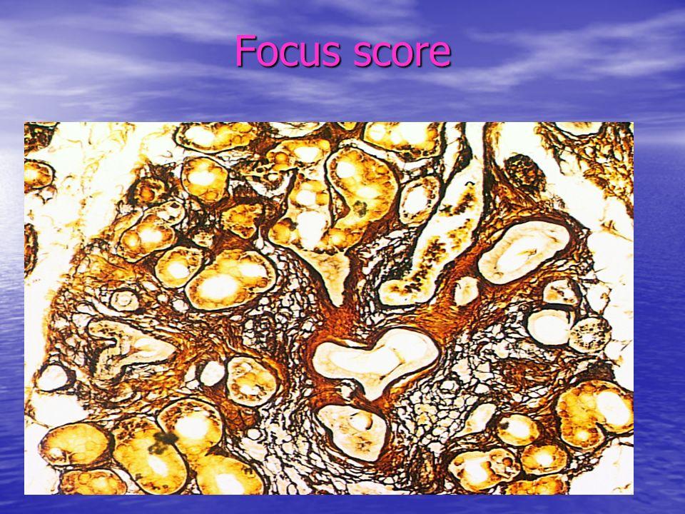 USG ślinianek Czułość 47-91%; Specyficzność 82-94% Czułość 47-91%; Specyficzność 82-94% Grupa badana pSS 32 (78%) sSS 15 (75%)