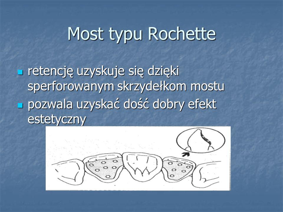 Most typu Rochette retencję uzyskuje się dzięki sperforowanym skrzydełkom mostu retencję uzyskuje się dzięki sperforowanym skrzydełkom mostu pozwala u