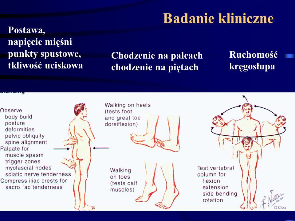 Badanie kliniczne Postawa, napięcie mięśni punkty spustowe, tkliwość uciskowa Chodzenie na palcach chodzenie na piętach Ruchomość kręgosłupa