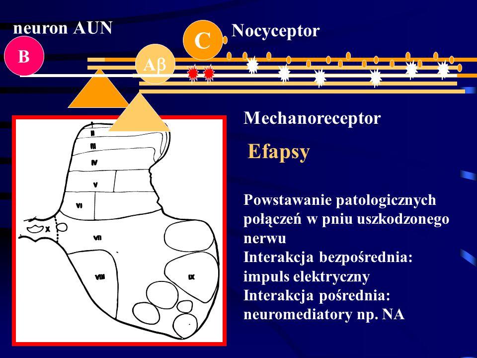C A Nocyceptor Mechanoreceptor B neuron AUN Powstawanie patologicznych połączeń w pniu uszkodzonego nerwu Interakcja bezpośrednia: impuls elektryczny
