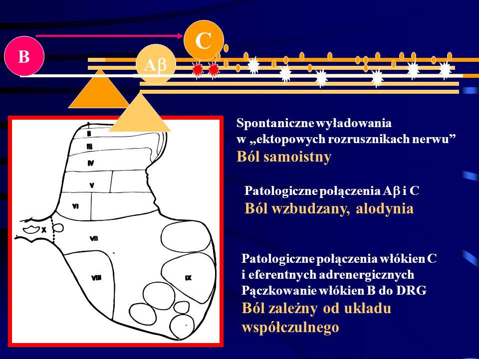 C A B Spontaniczne wyładowania w ektopowych rozrusznikach nerwu Ból samoistny Patologiczne połączenia A i C Ból wzbudzany, alodynia Patologiczne połąc