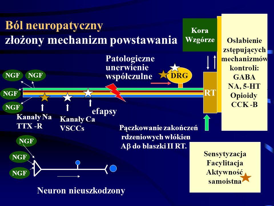 Ból neuropatyczny złożony mechanizm powstawania DRG RT Kanały Na TTX -R Kanały Ca VSCCs efapsy Sensytyzacja Facylitacja Aktywność samoistna Osłabienie