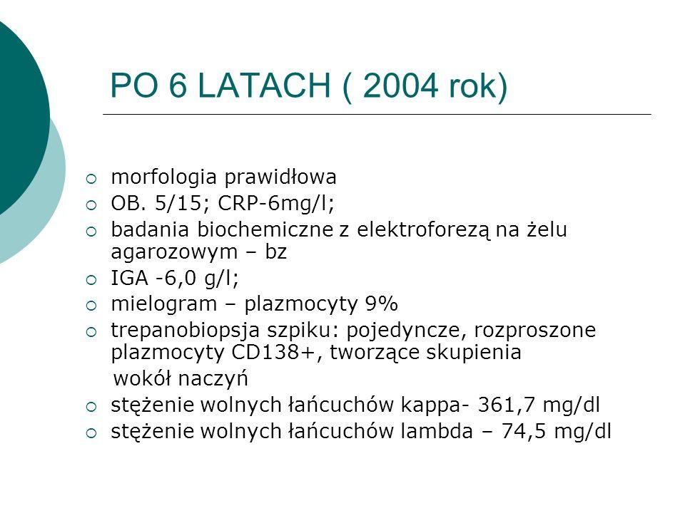 PO 6 LATACH ( 2004 rok) morfologia prawidłowa OB. 5/15; CRP-6mg/l; badania biochemiczne z elektroforezą na żelu agarozowym – bz IGA -6,0 g/l; mielogra