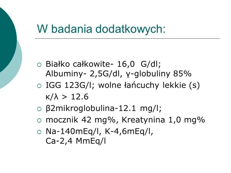 W badania dodatkowych: Białko całkowite- 16,0 G/dl; Albuminy- 2,5G/dl, γ-globuliny 85% IGG 123G/l; wolne łańcuchy lekkie (s) κ/λ > 12.6 β2mikroglobuli