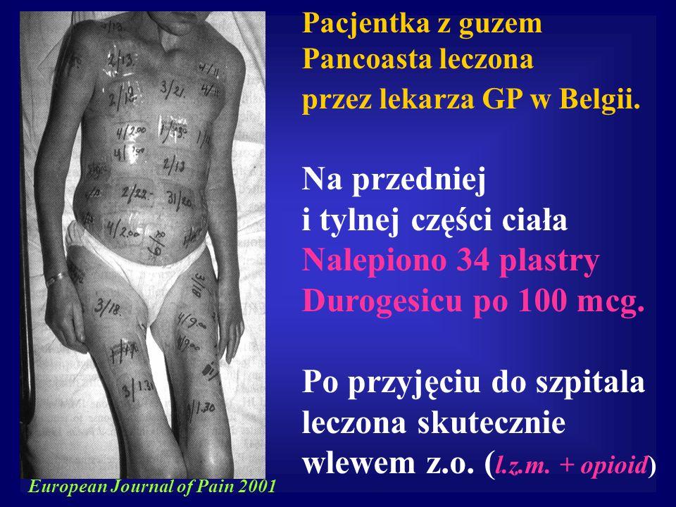 Pacjentka z guzem Pancoasta leczona przez lekarza GP w Belgii. Na przedniej i tylnej części ciała Nalepiono 34 plastry Durogesicu po 100 mcg. Po przyj