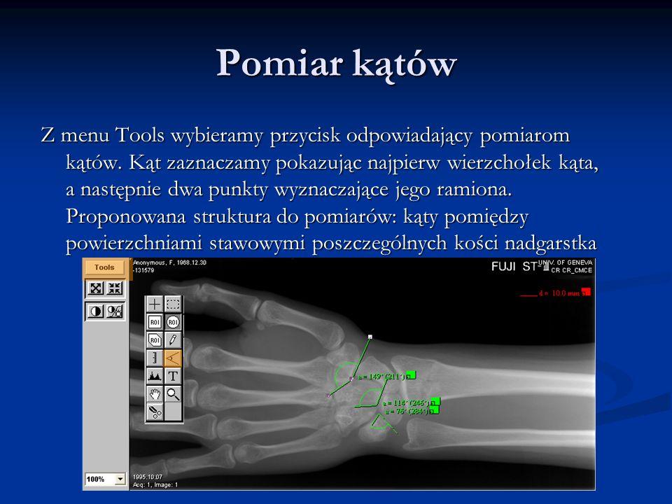 Ćwiczenie Rozpoczyna się uruchomieniem programu i wybraniem pliku wrist2.pap