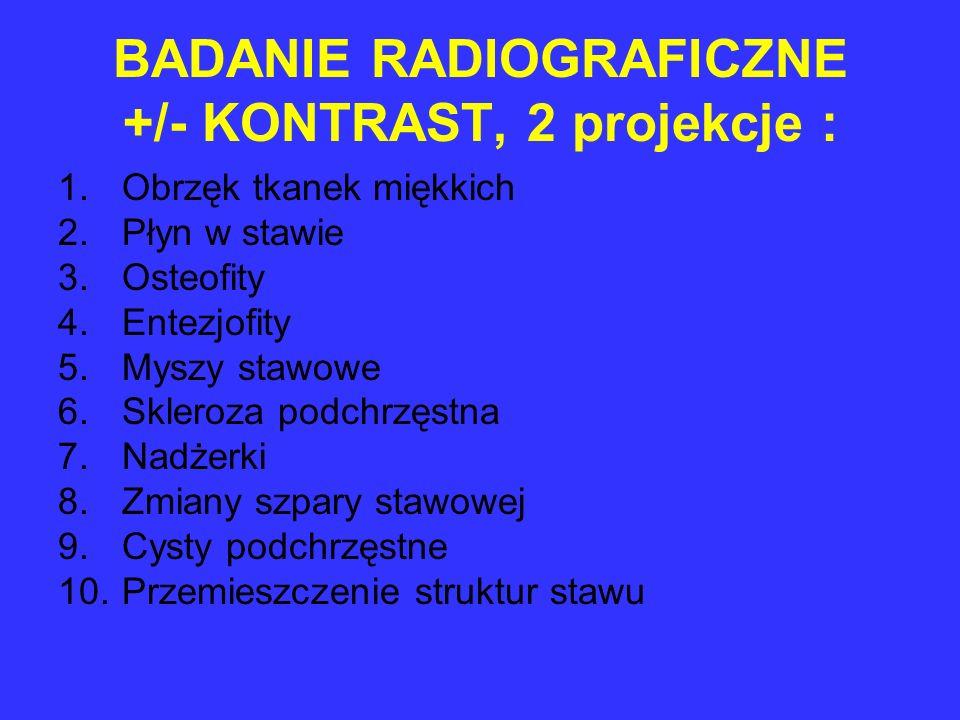 BADANIE RADIOGRAFICZNE +/- KONTRAST, 2 projekcje : 1.Obrzęk tkanek miękkich 2.Płyn w stawie 3.Osteofity 4.Entezjofity 5.Myszy stawowe 6.Skleroza podch