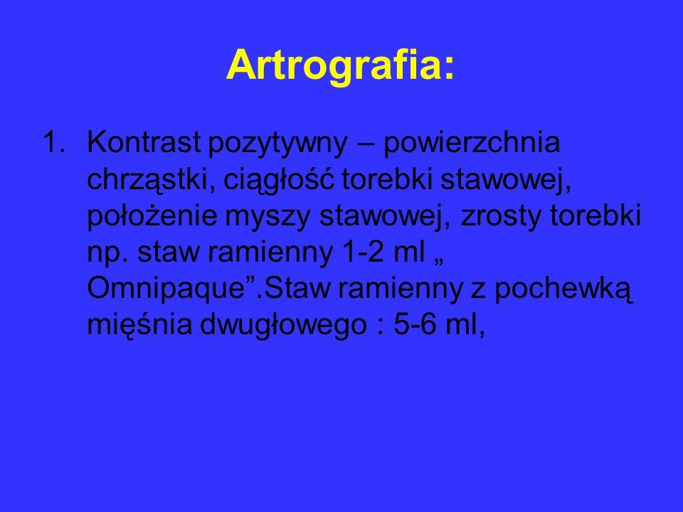 Artrografia: 1.Kontrast pozytywny – powierzchnia chrząstki, ciągłość torebki stawowej, położenie myszy stawowej, zrosty torebki np. staw ramienny 1-2
