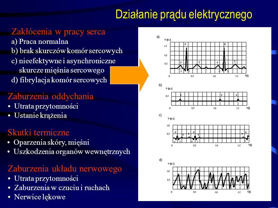 Działanie prądu elektrycznego Zakłócenia w pracy serca a) Praca normalna b) brak skurczów komór sercowych c) nieefektywne i asynchroniczne skurcze mię