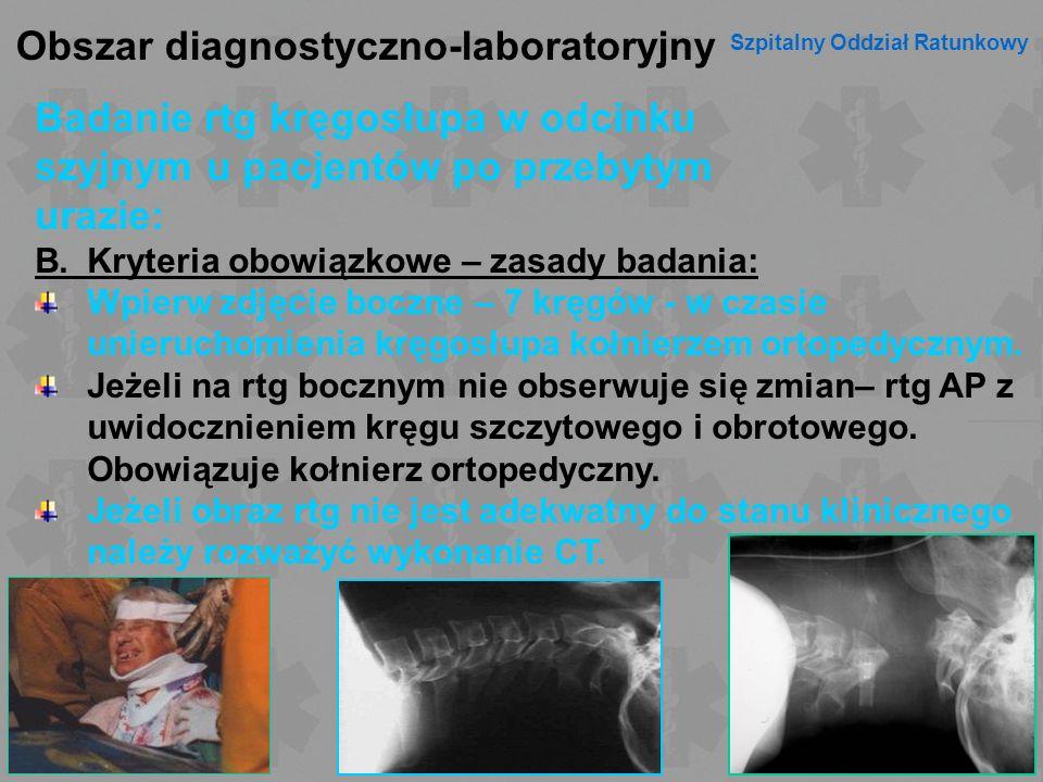 Obszar diagnostyczno-laboratoryjny Szpitalny Oddział Ratunkowy Badanie rtg kręgosłupa w odcinku szyjnym u pacjentów po przebytym urazie: B.Kryteria ob