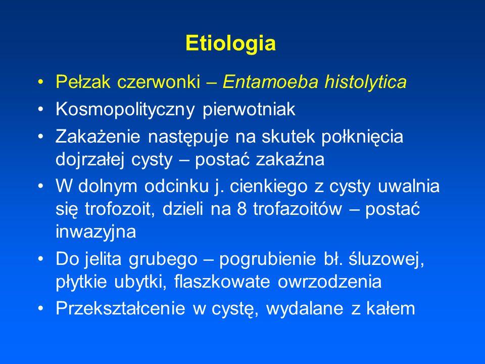 Etiologia Pełzak czerwonki – Entamoeba histolytica Kosmopolityczny pierwotniak Zakażenie następuje na skutek połknięcia dojrzałej cysty – postać zakaź