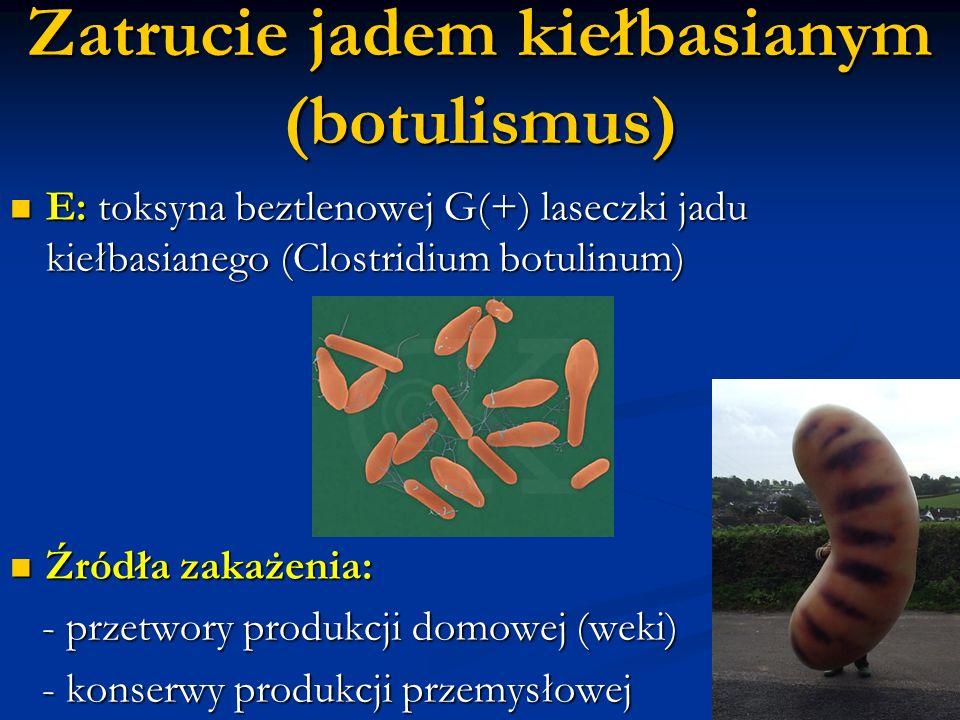Zatrucie jadem kiełbasianym (botulismus) E: toksyna beztlenowej G(+) laseczki jadu kiełbasianego (Clostridium botulinum) E: toksyna beztlenowej G(+) l