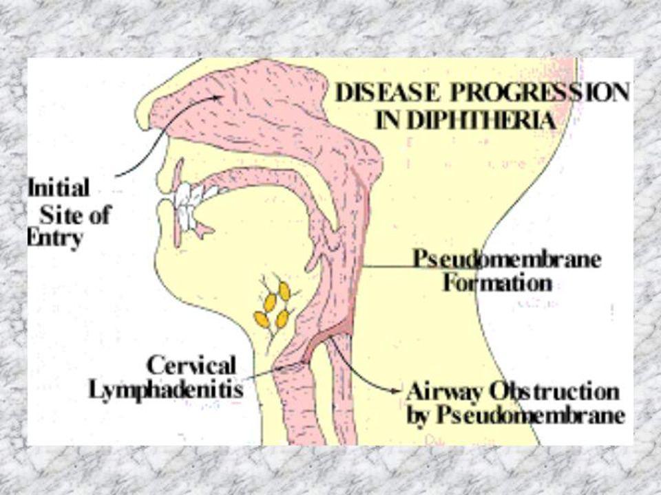 Patogeneza miejscowe (zwyrodnienie, martwica, odczyn zapalny wysiękowo-włóknikowy) miejscowe (zwyrodnienie, martwica, odczyn zapalny wysiękowo-włóknikowy) odległe (hamowanie syntezy łańcuchów białkowych) odległe (hamowanie syntezy łańcuchów białkowych) - mięsień sercowy (martwica rozpływna włókien mięśniowych) - mięsień sercowy (martwica rozpływna włókien mięśniowych) - układ nerwowy (odwracalna segmentowa demielinizacja - układ nerwowy (odwracalna segmentowa demielinizacja włókien nerwowych) włókien nerwowych) - wątroba - wątroba - nadnercza - nadnercza - nerki - nerki - płuca - płuca