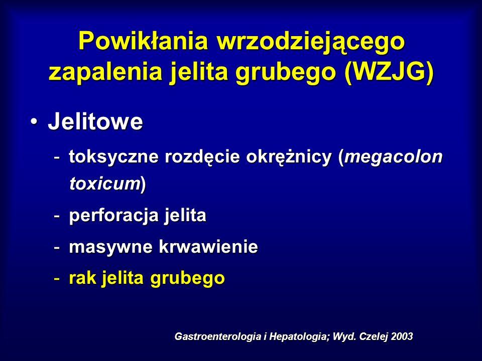 Powikłania wrzodziejącego zapalenia jelita grubego (WZJG) JelitoweJelitowe -toksyczne rozdęcie okrężnicy (megacolon toxicum) -perforacja jelita -masyw