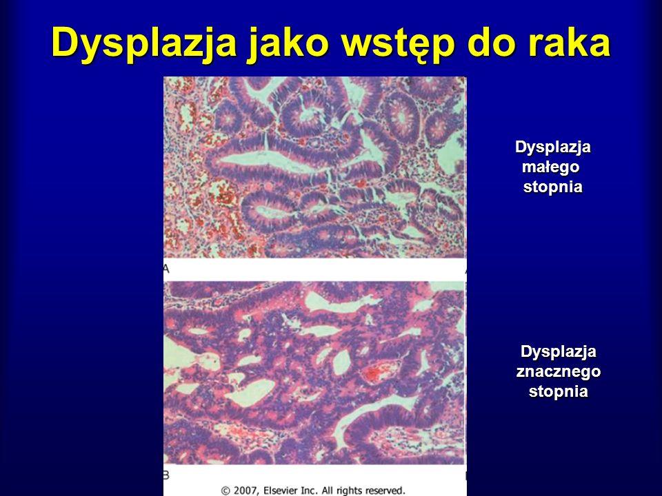 Dysplazja jako wstęp do raka Dysplazjamałegostopnia Dysplazjaznacznegostopnia