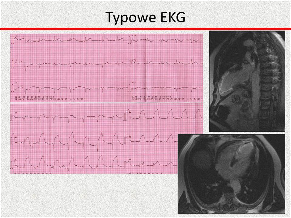 Nietypowe EKG Stymulacja Raczej niezwłoczna angiografia Niediagnostyczne uniesienie odcinka ST Raczej niezwłoczna angiografia Uniesienie w aVR i V1 + obniżenie odcinka ST w II, III, aVF angiografia, szczególnie gdy niestabilność hemodynamiczna