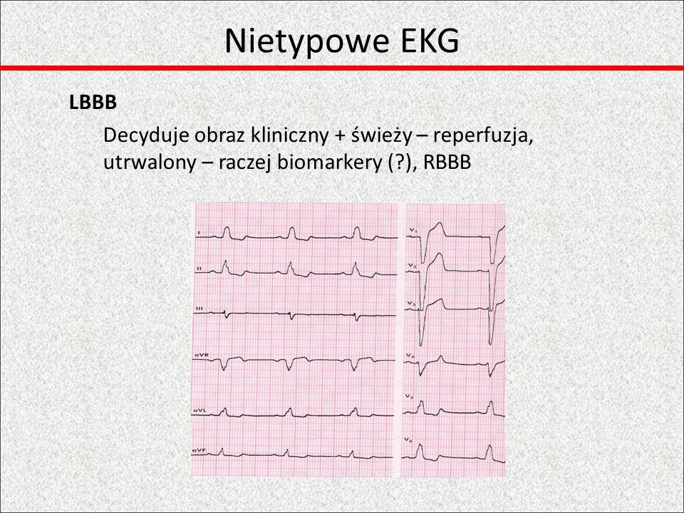 Nietypowe EKG Izolowany zawał ściany tylnej V7-9 i angiografia