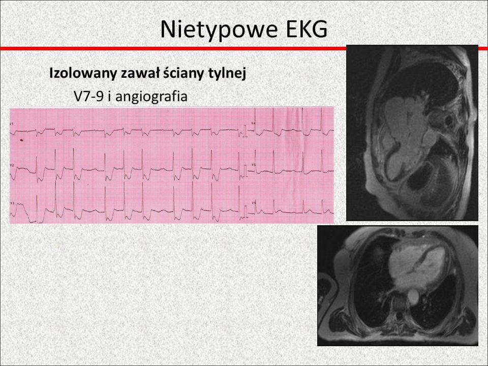 Wstępne rozpoznanie ZalecenieKlasaPoziom 12-odpr EKG do 10 min od FMCIB Monitorowanie EKG rozpocząć u wszystkich z podejrzeniem STEMIIB Pobranie krwi na biomarkery rutynowe, reperfuzja bez oczekiwania na wynik IC Odpr.