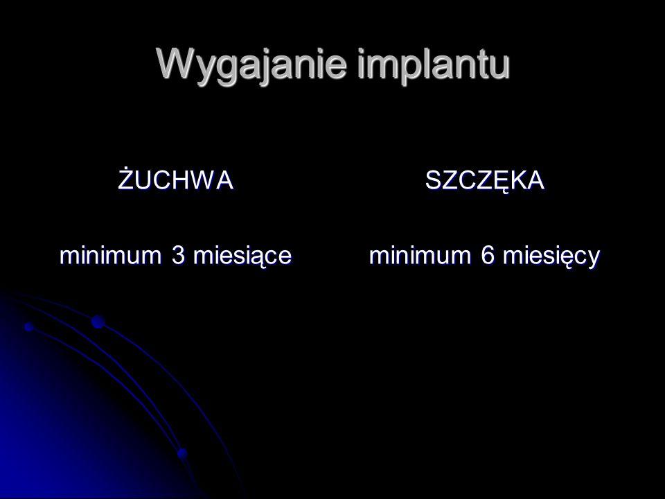 Wygajanie implantu ŻUCHWA minimum 3 miesiące SZCZĘKA minimum 6 miesięcy