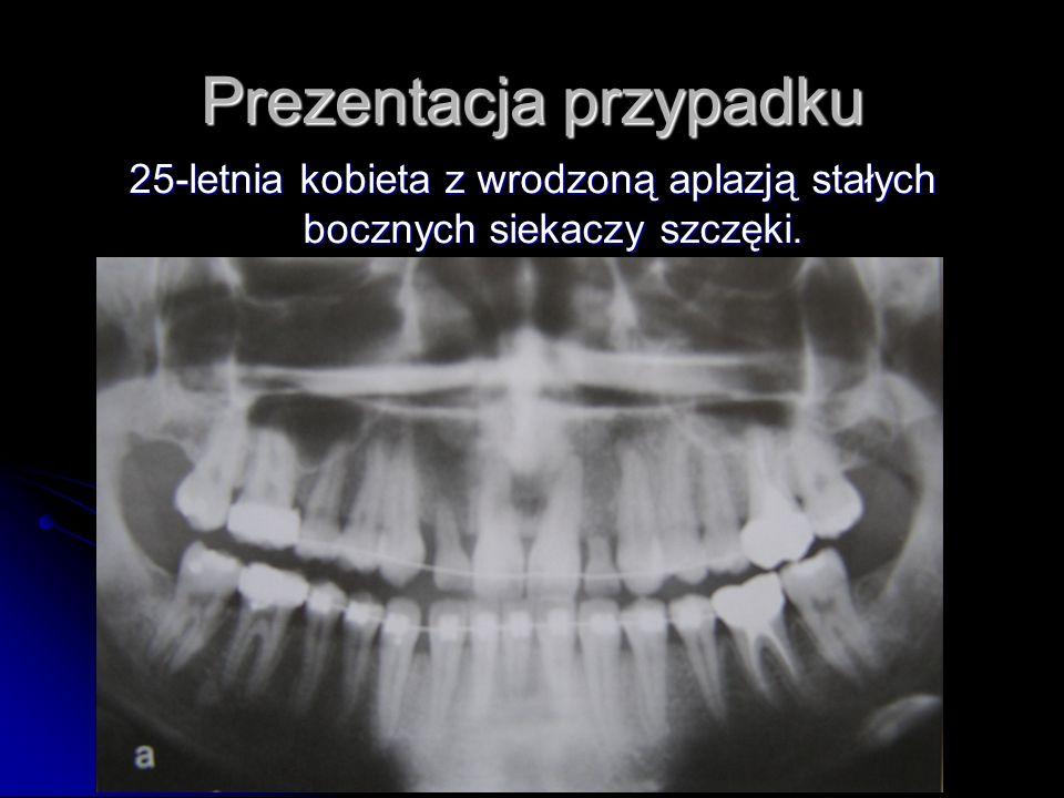 Prezentacja przypadku 25-letnia kobieta z wrodzoną aplazją stałych bocznych siekaczy szczęki.