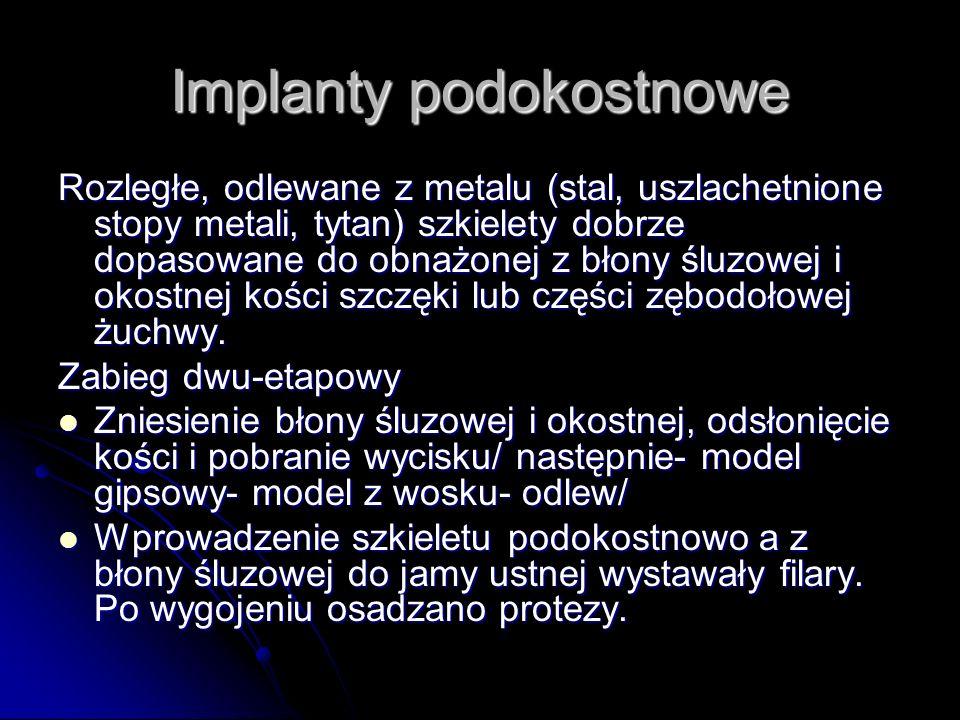 Implanty śródkostne Najbardziej rozpowszechnione.