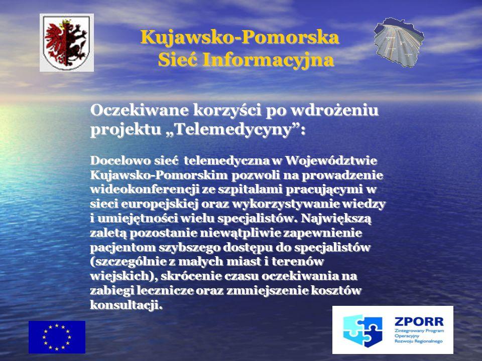 29 Oczekiwane korzyści po wdrożeniu projektu Telemedycyny: Docelowo sieć telemedyczna w Województwie Kujawsko-Pomorskim pozwoli na prowadzenie wideokonferencji ze szpitalami pracującymi w sieci europejskiej oraz wykorzystywanie wiedzy i umiejętności wielu specjalistów.
