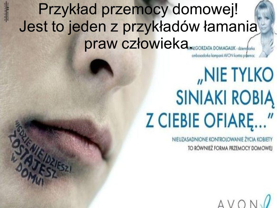 Przykład przemocy domowej! Jest to jeden z przykładów łamania praw człowieka.