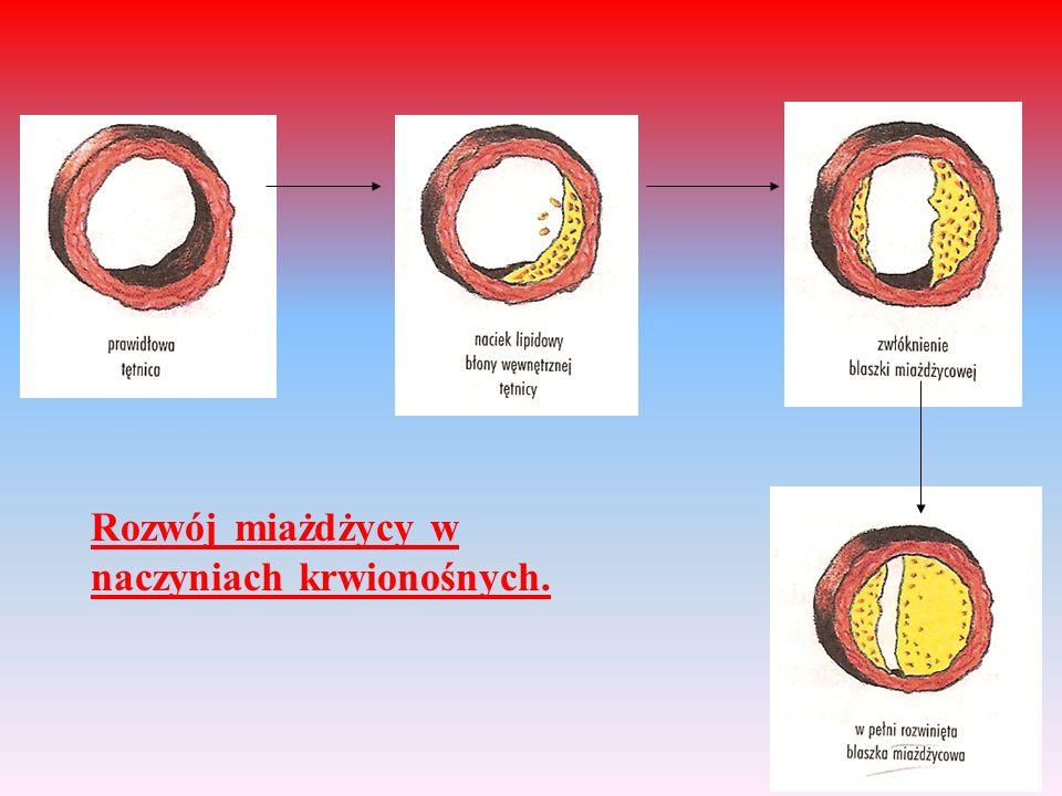Rozwój miażdżycy w naczyniach krwionośnych.