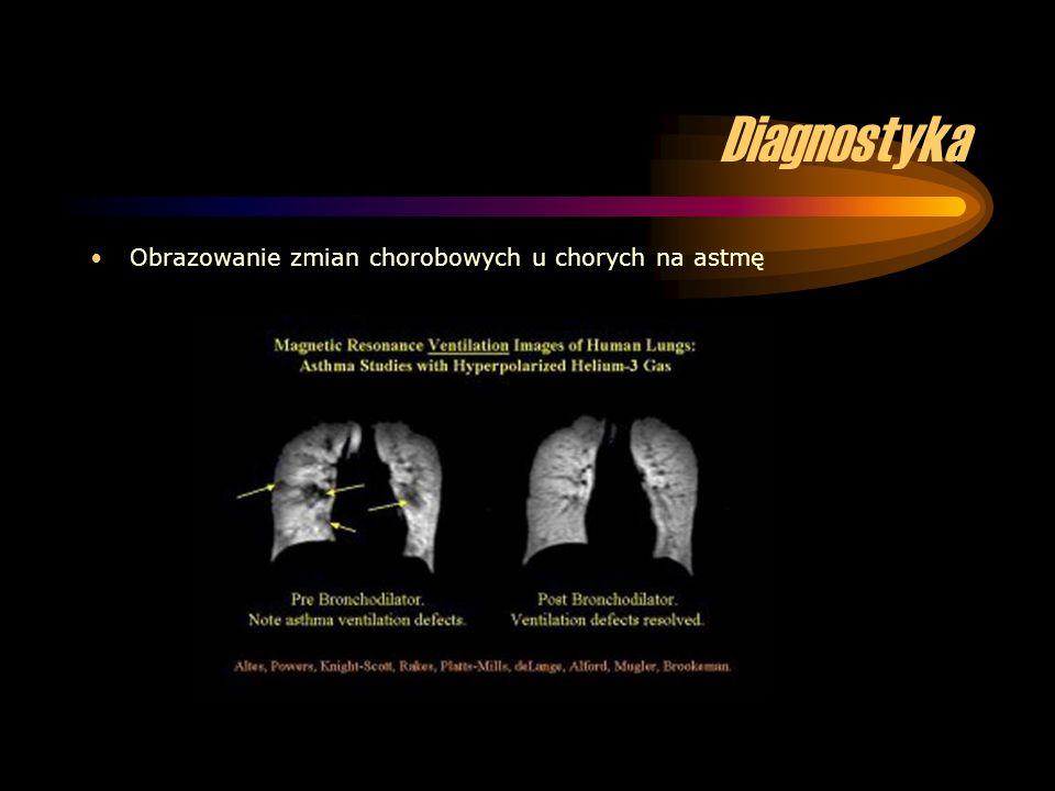 Diagnostyka Obrazowanie zmian chorobowych u chorych na astmę