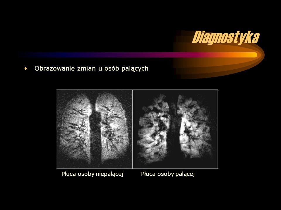 Diagnostyka Obrazowanie zmian u osób palących Płuca osoby niepalącejPłuca osoby palącej