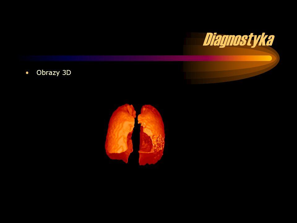 Diagnostyka Obrazy 3D