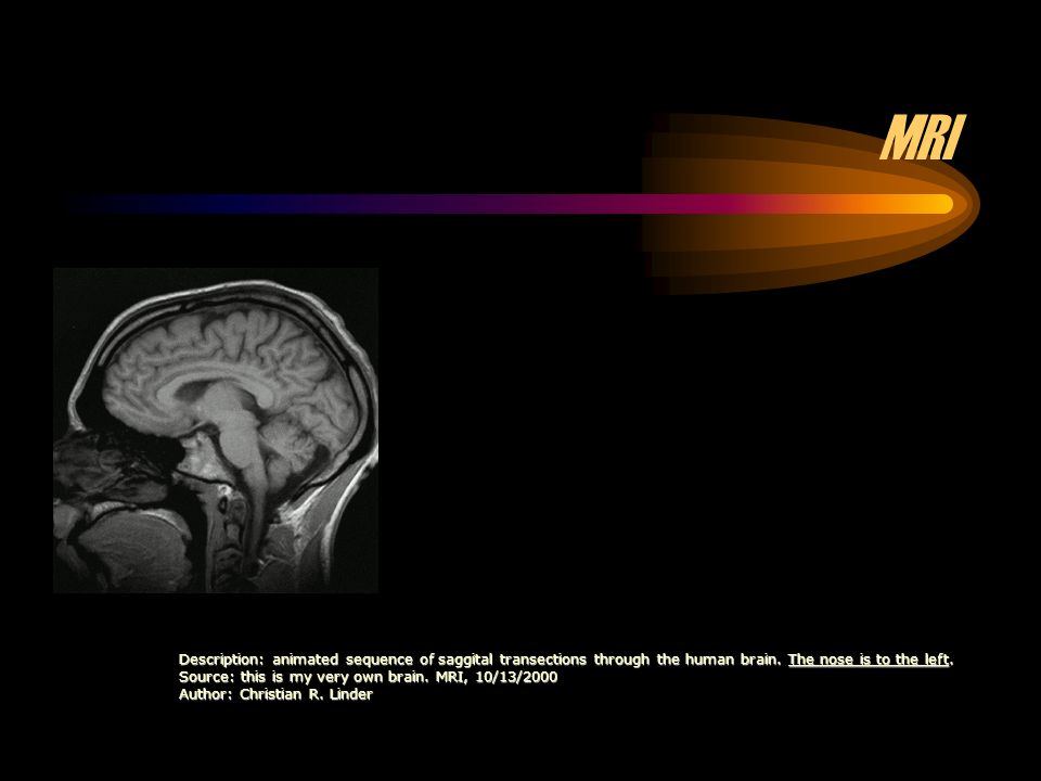 Description: animated sequence of saggital transections through the human brain.