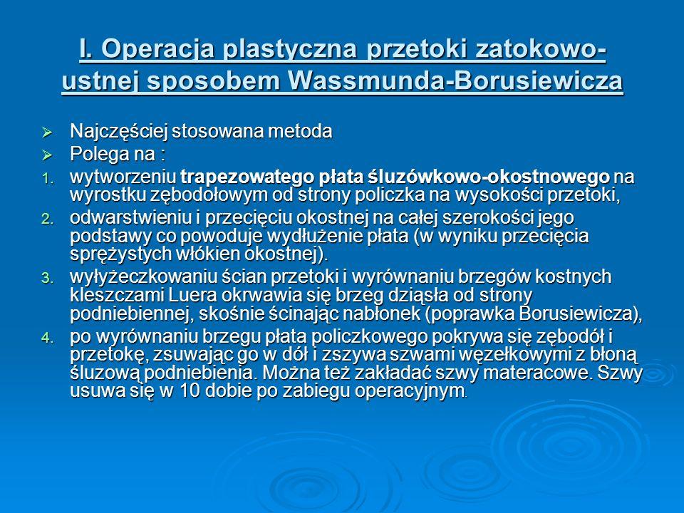 I. Operacja plastyczna przetoki zatokowo- ustnej sposobem Wassmunda-Borusiewicza Najczęściej stosowana metoda Najczęściej stosowana metoda Polega na :