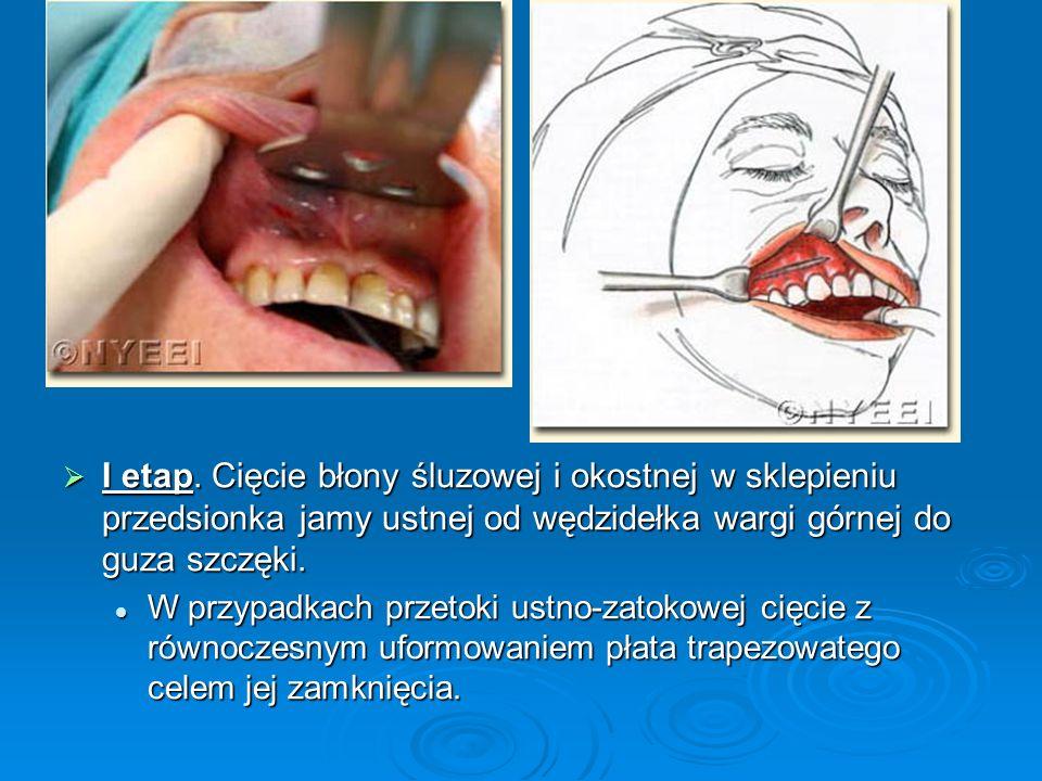 I etap. Cięcie błony śluzowej i okostnej w sklepieniu przedsionka jamy ustnej od wędzidełka wargi górnej do guza szczęki. I etap. Cięcie błony śluzowe