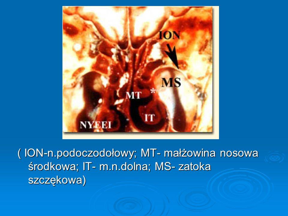 ( ION-n.podoczodołowy; MT- małżowina nosowa środkowa; IT- m.n.dolna; MS- zatoka szczękowa)
