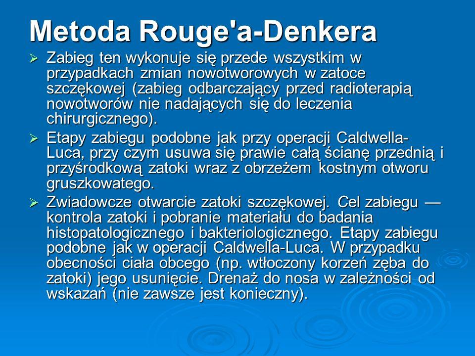 Metoda Rouge'a-Denkera Zabieg ten wykonuje się przede wszystkim w przypadkach zmian nowotworowych w zatoce szczękowej (zabieg odbarczający przed radio