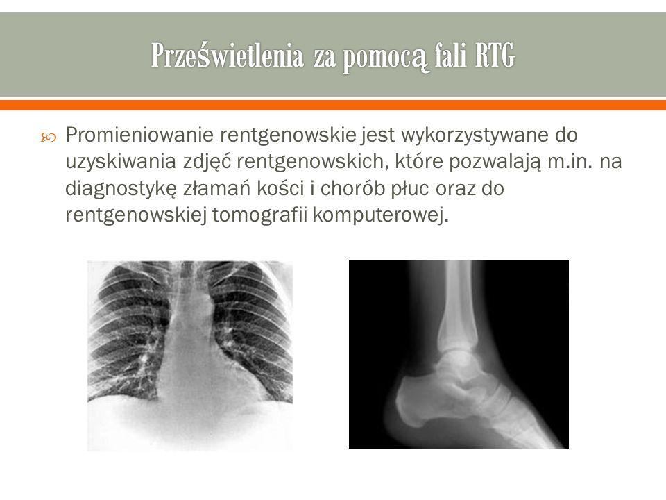 Promieniowanie rentgenowskie jest wykorzystywane do uzyskiwania zdjęć rentgenowskich, które pozwalają m.in. na diagnostykę złamań kości i chorób płuc