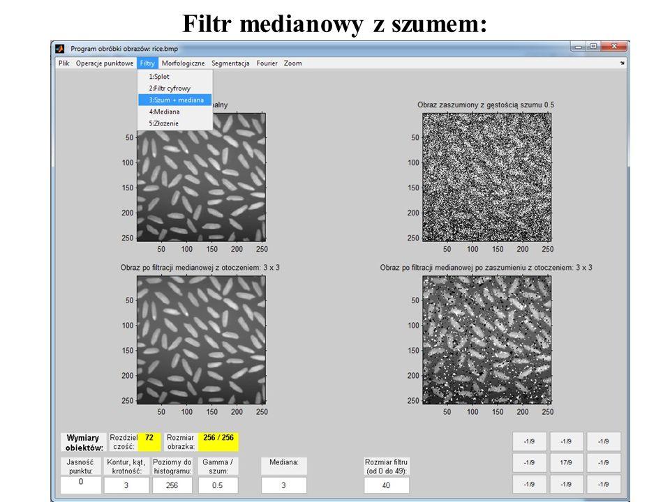 5 Filtr medianowy z szumem: