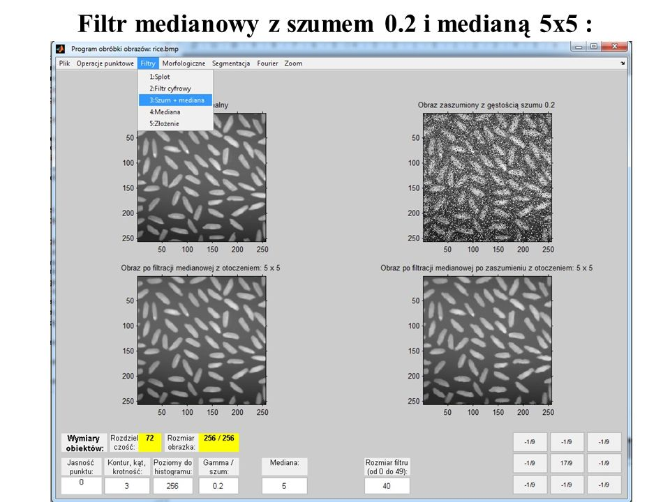 7 Filtr medianowy z szumem 0.2 i medianą 5x5 :