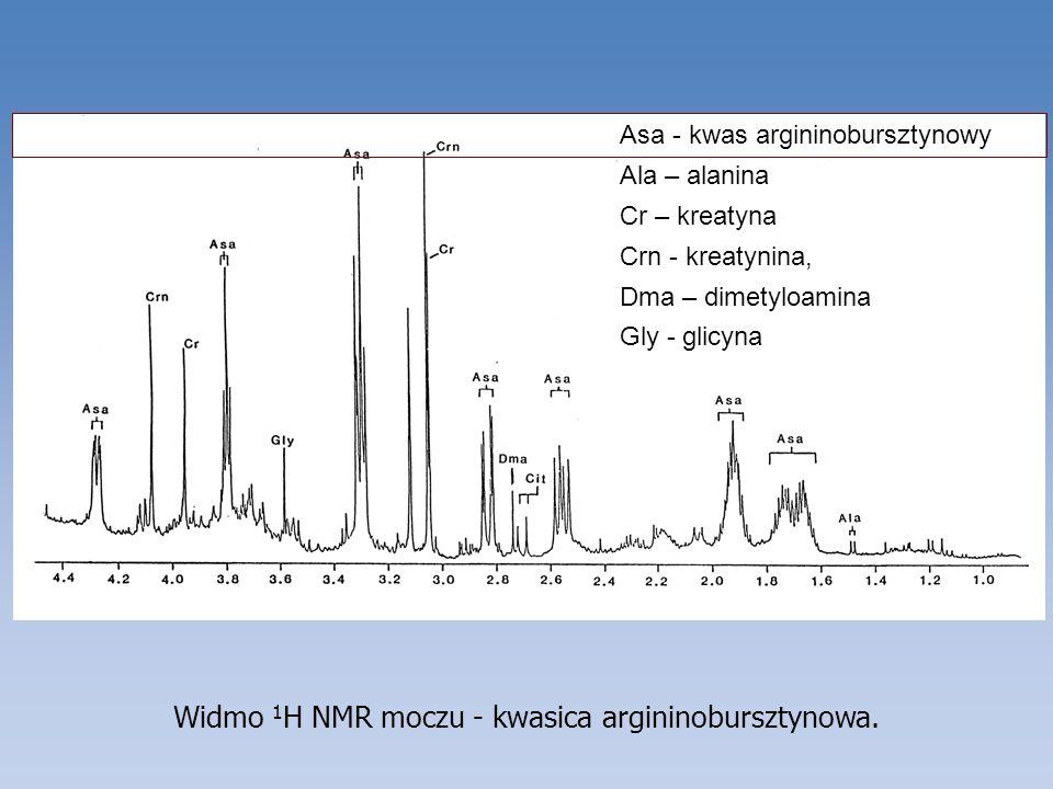 Widmo 1 H NMR moczu - kwasica argininobursztynowa. Asa - kwas argininobursztynowy Ala – alanina Cr – kreatyna Crn - kreatynina, Dma – dimetyloamina Gl