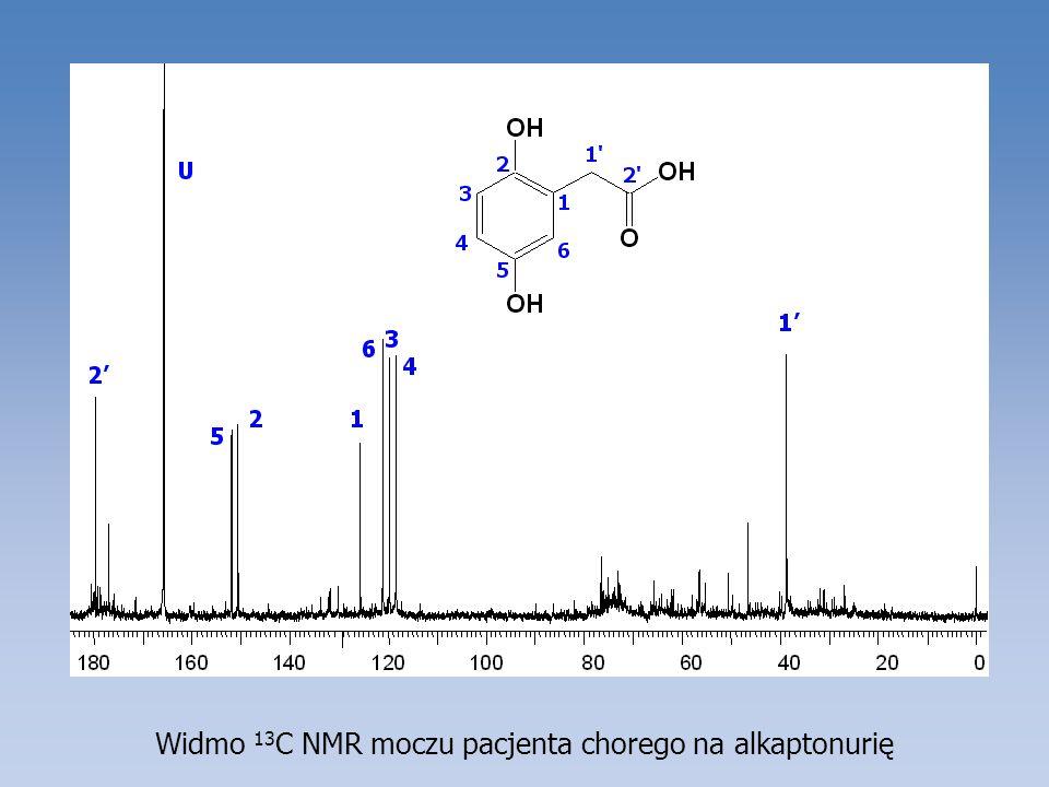 Widmo 13 C NMR moczu pacjenta chorego na alkaptonurię